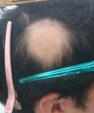円形脱毛症が僅か3ヶ月で回復!!
