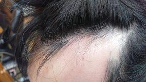 全頭脱毛症のお客様 4月来店時の写真1