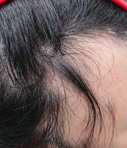 全頭脱毛症のお客様 4月来店時の写真2