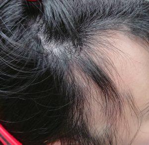 全頭脱毛症のお客様 5月来店時の写真2