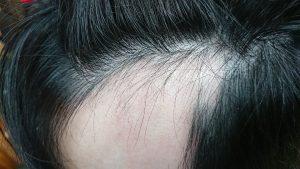 全頭脱毛症のお客様 5月来店時の写真1