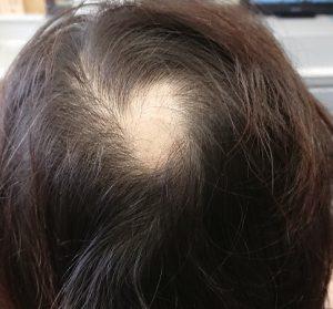 天頂部(つむじ付近)に500円玉大の円形脱毛症