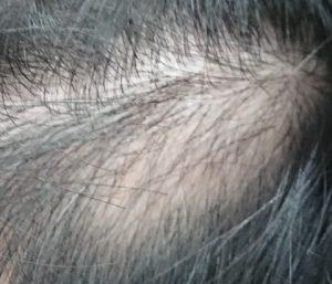 前回の円形脱毛症(小)の状況