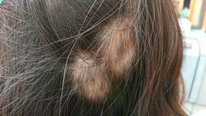 治ってきている大きな円形脱毛症(12月1日)