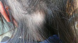 刈谷市 円形脱毛症