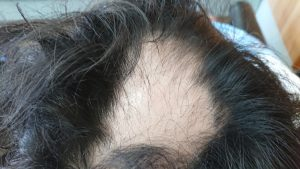 西尾市のI様(30代男性) 天頂部 円形脱毛