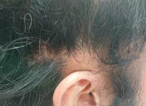 西尾市のI様(30代男性) 耳の上部 円形脱毛