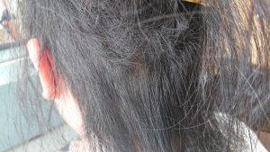 円形脱毛症(女性)後頭部下部の円形脱毛部位 2/7撮影