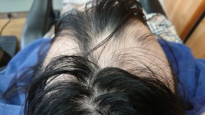 女子中学生の円形脱毛症ケア 頭頂部位1月撮影