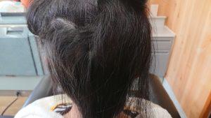 女子中学生の円形脱毛症ケア 後頭部位5月撮影