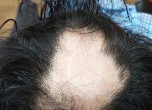 円形脱毛症(32歳 男性) 初来店時