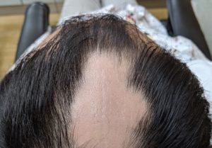円形脱毛症ケア(32歳 男性) 外側から発毛