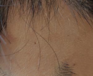 円形脱毛症 新生毛