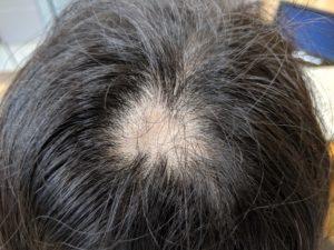 円形脱毛症ケア(17歳 女子高校生) つむじ部分