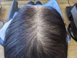 女性の薄毛 増毛前