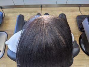 女性の薄毛 増毛後
