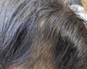 円形脱毛症ケア(32歳 男性) 2月26日時点