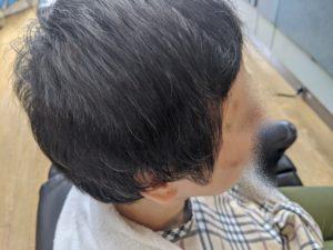みよし市のMさま(女性) 円形脱毛症が回復3