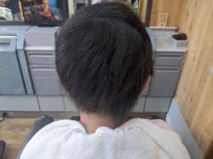 円形脱毛症 小学生(女の子) 回復後1