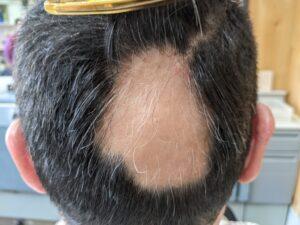 豊田市のSさま(50代 男性) 円形脱毛症の写真(2021年1月撮影)